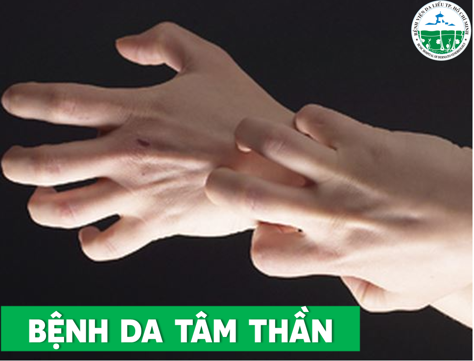 benh-da-tam-than